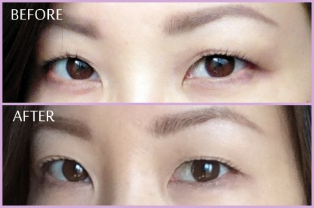 06 Eyelid Trainer Review-Before and After