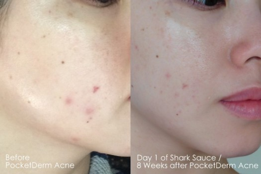 01 Before PocketDerm Compare Day 1 of Shark Sauce