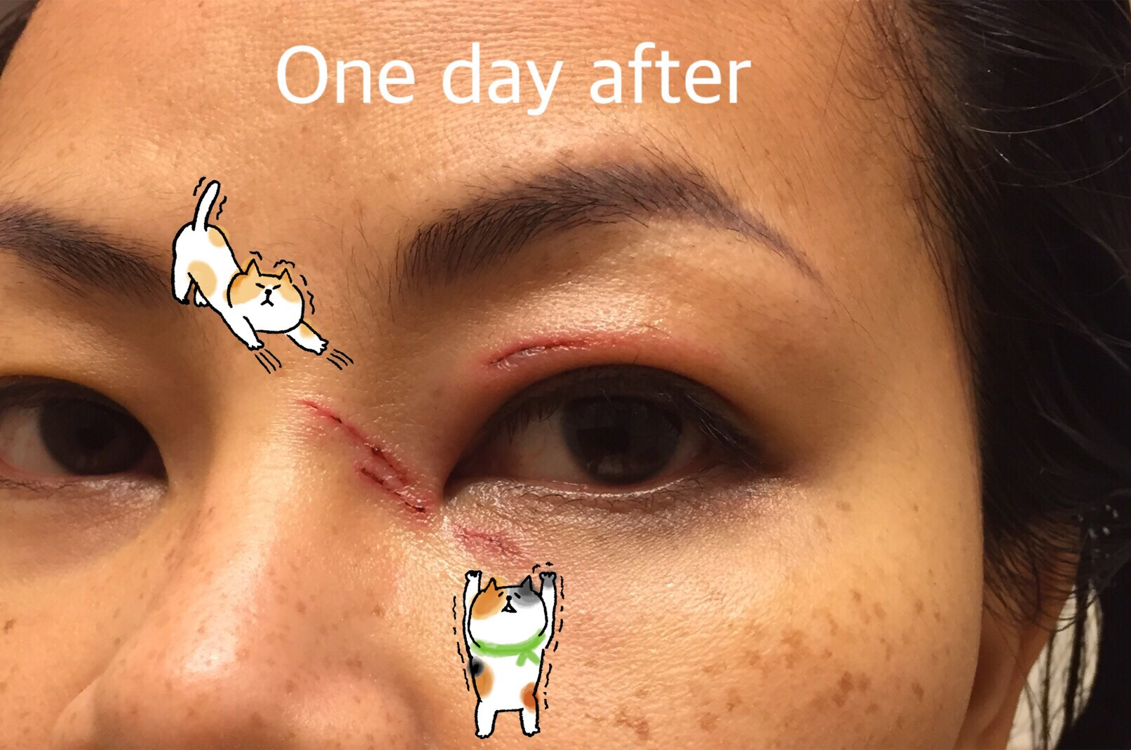 Cat Bite Don T Heal