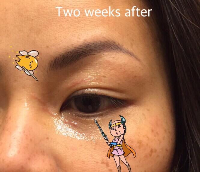 Prevent Scarring Face Cat Scratch